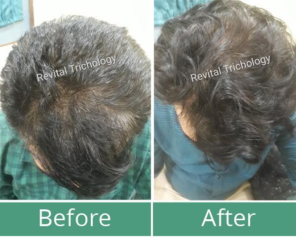 Hair loss case study 2