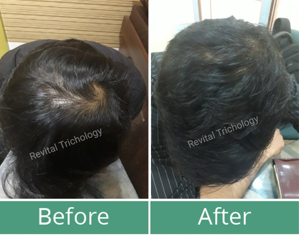 Hair loss case study 3