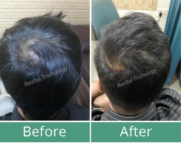 Hair regrowth in Mumbai