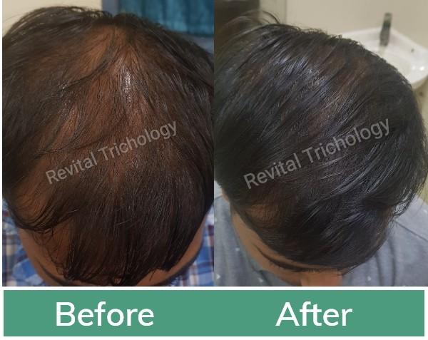 Hair loss treatment in Mumbai